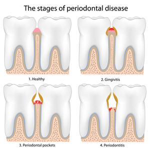 Was ist Parodontose?
